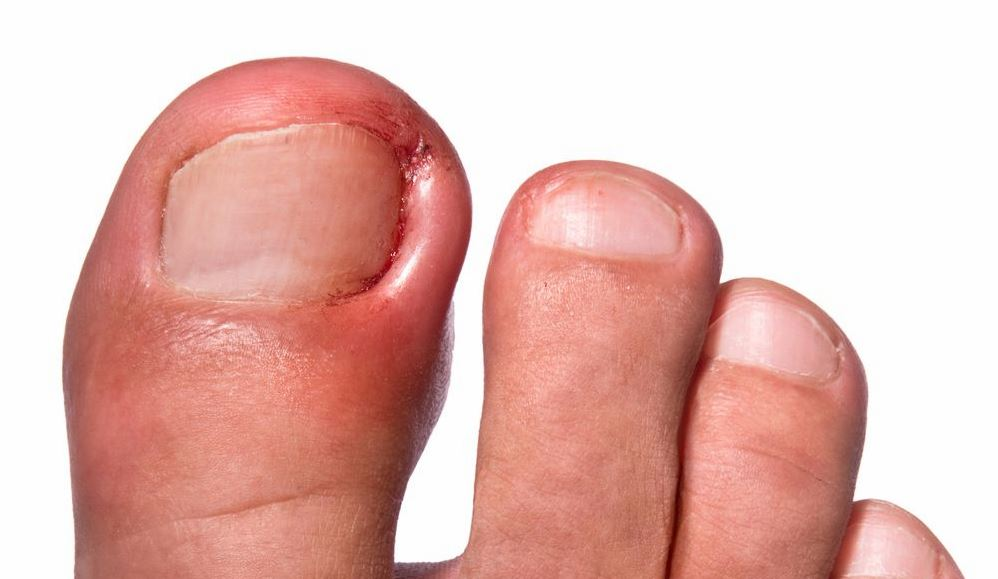 Признаки вросшего ногтя