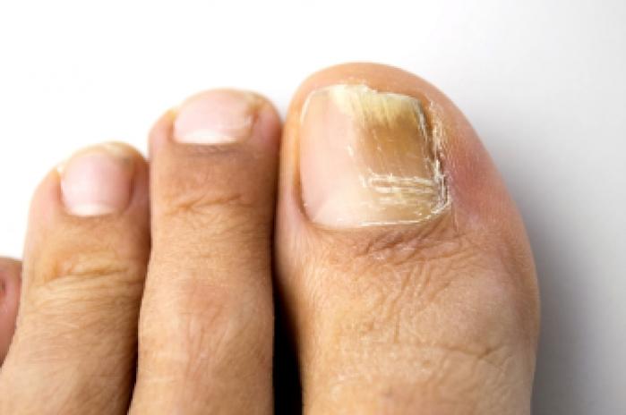 Дрожжевой грибок на ногтях рук
