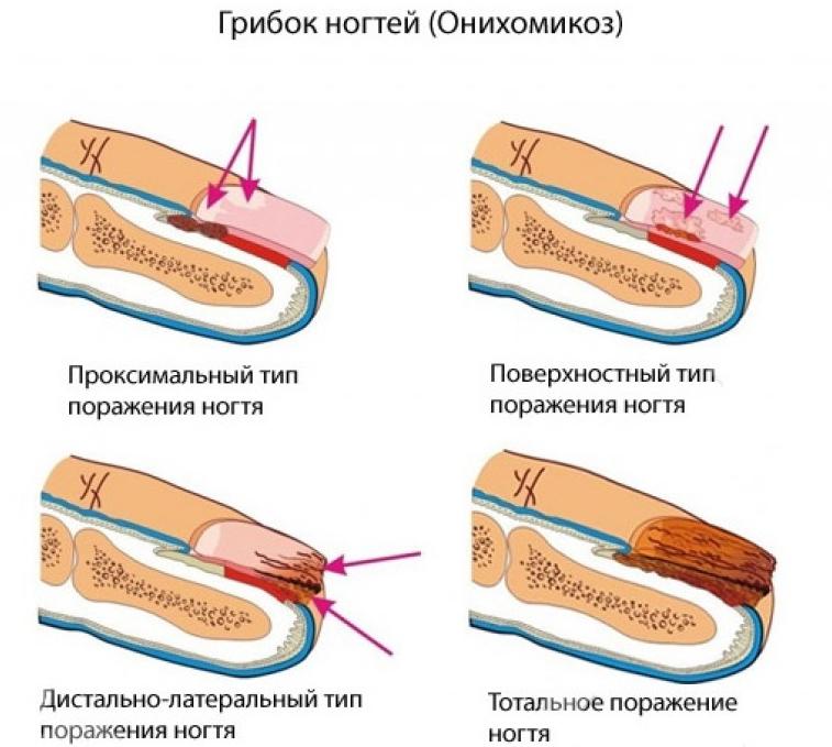 Чем размягчить ногти на руках при грибке