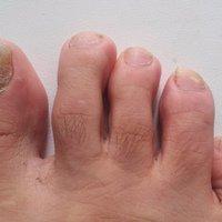 Ноготь на ноге врастает в кожу операция thumbnail