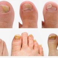 Ноготь на ноге врастает в кожу операция