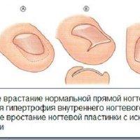 Как вылечить ноготь врастает в палец на ноге thumbnail