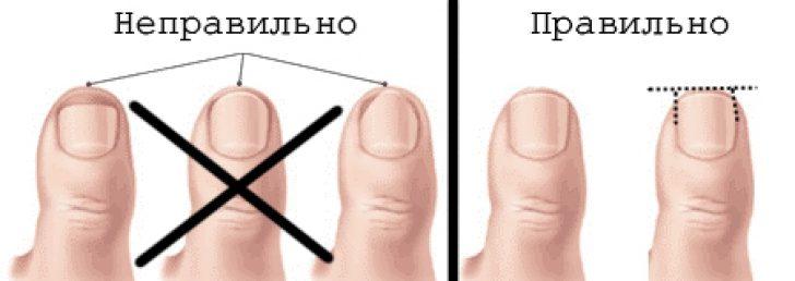 вросший ноготь: как правильно стричь ногти