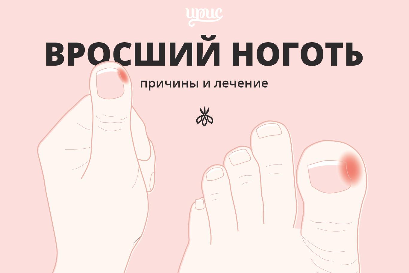Как обезболить палец чтобы вырезать ноготь