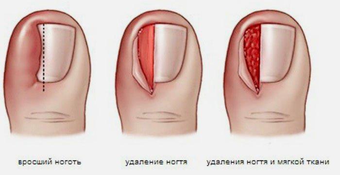 хирургическое лечение вросшего ногтя