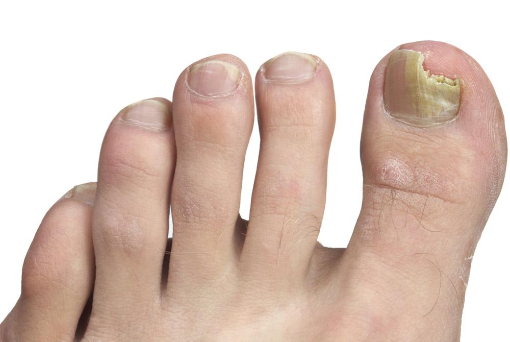 Грибок — частая причина вросшего ногтя